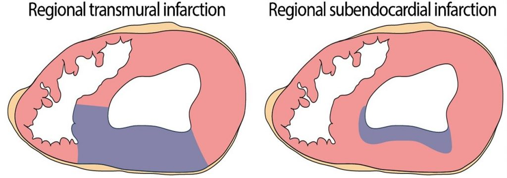 Patterns of topographic distribution of myocardial infarction e1590008801487